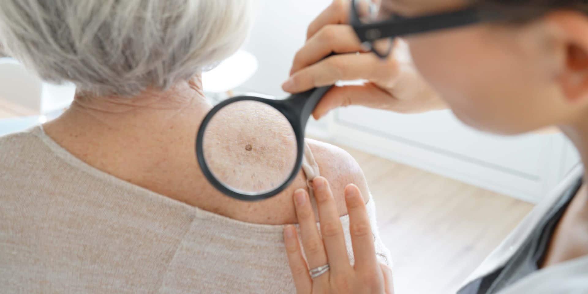 Les cancers de la peau passent trop souvent sous le radar: examinez-vous !
