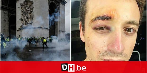 Violences à Paris: le journaliste Hugo Clément blessé au visage